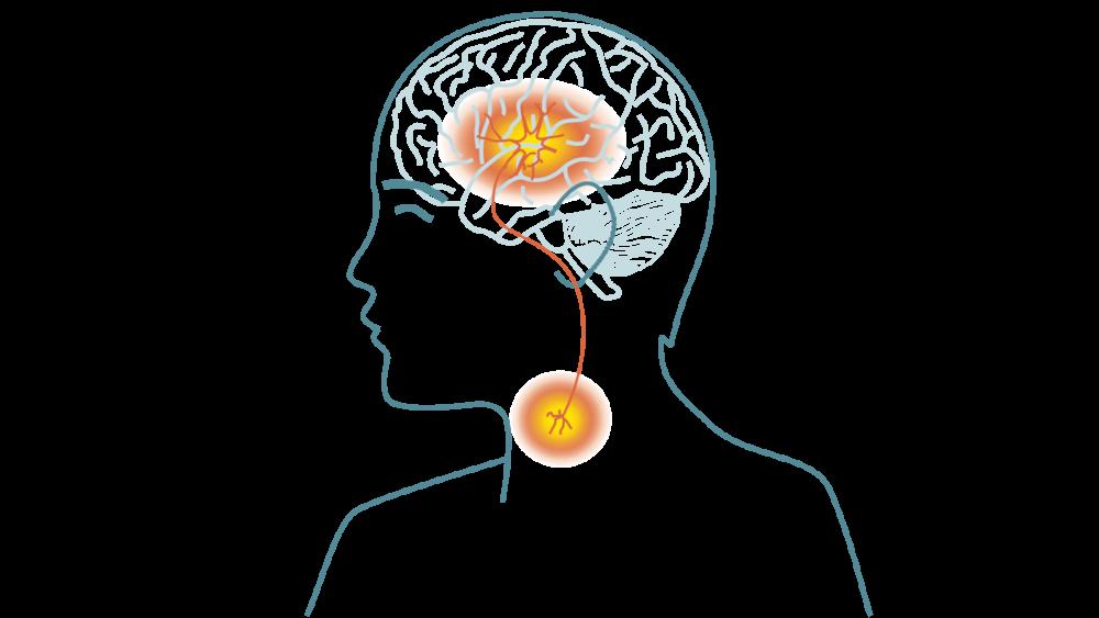 Dysfagi etter slag - symtomer og behandling