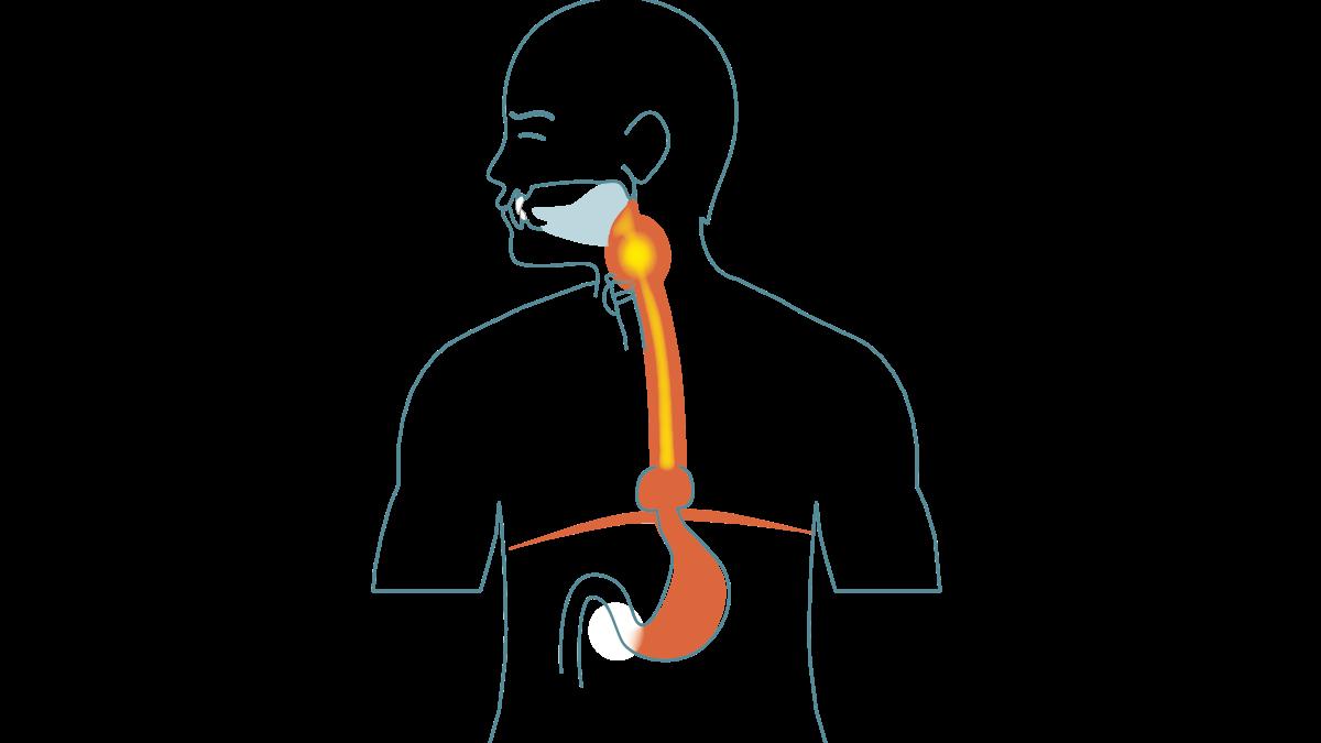 Behandling av halsbrann og sure oppstøt med IQoro