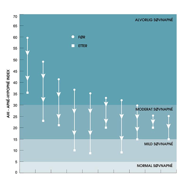 AHI Index - Resultatene av en pilotstudie om behandling av søvnapné med IQoro