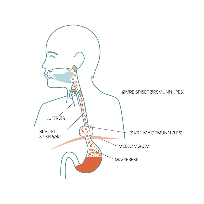 Mellomgulvsbrokk med refluks og magesyre i spiserøret