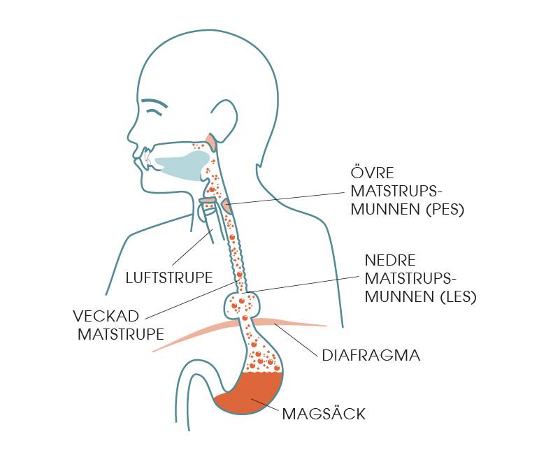 Illustrationen visar ett diafragmabråck