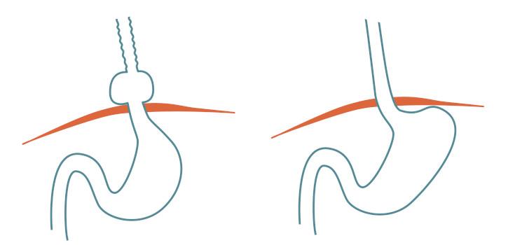 Magsäckens position vid diafragmabråck och normal position