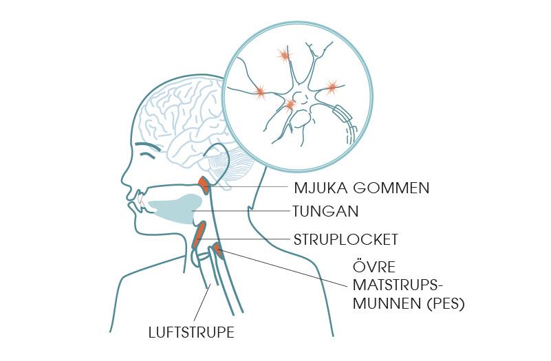 neurologiska sjukdomar kan ge sväljningsproblem