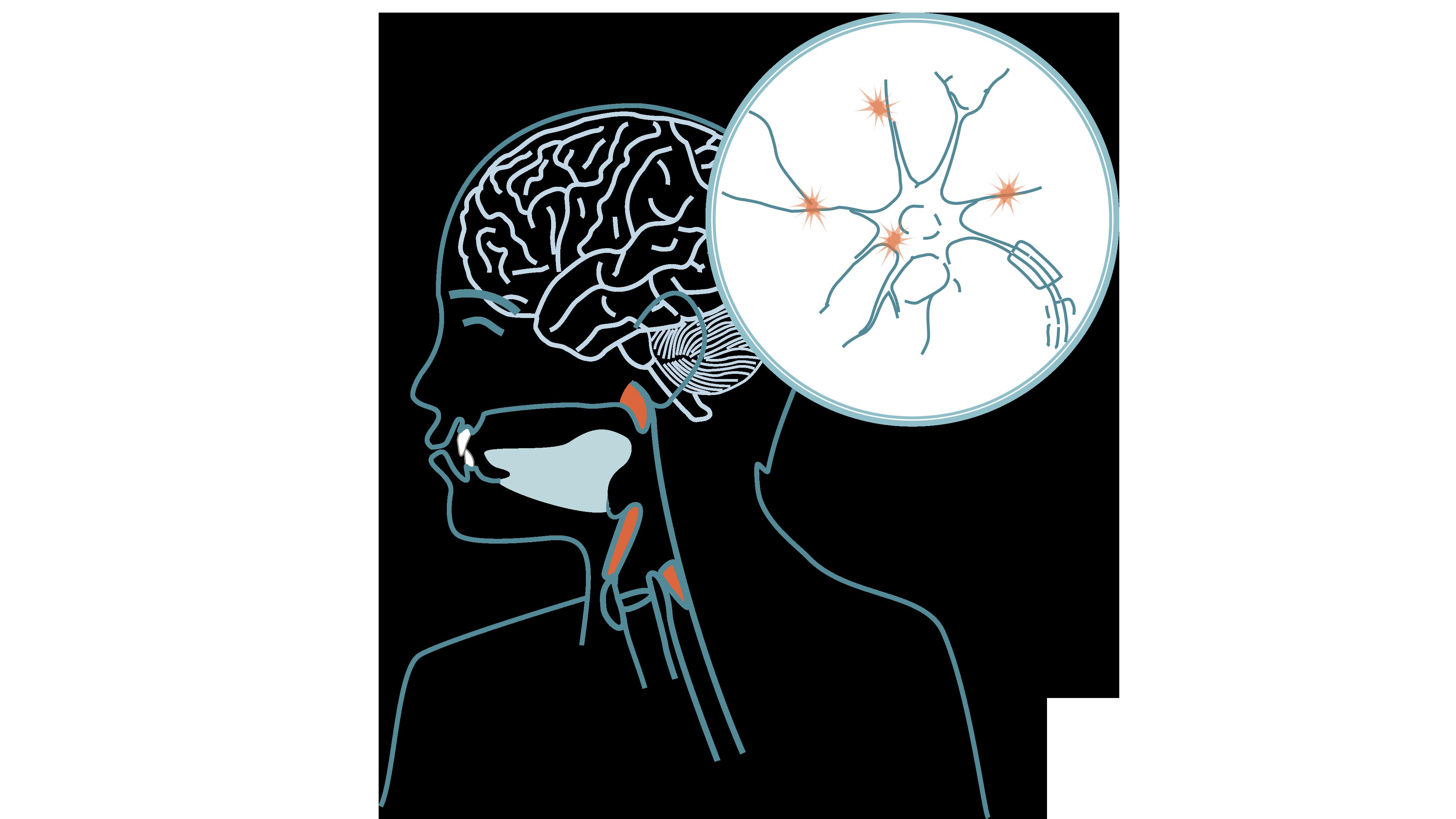 Neurologiska sjukdommar (MS, Parkinssons, ALS)