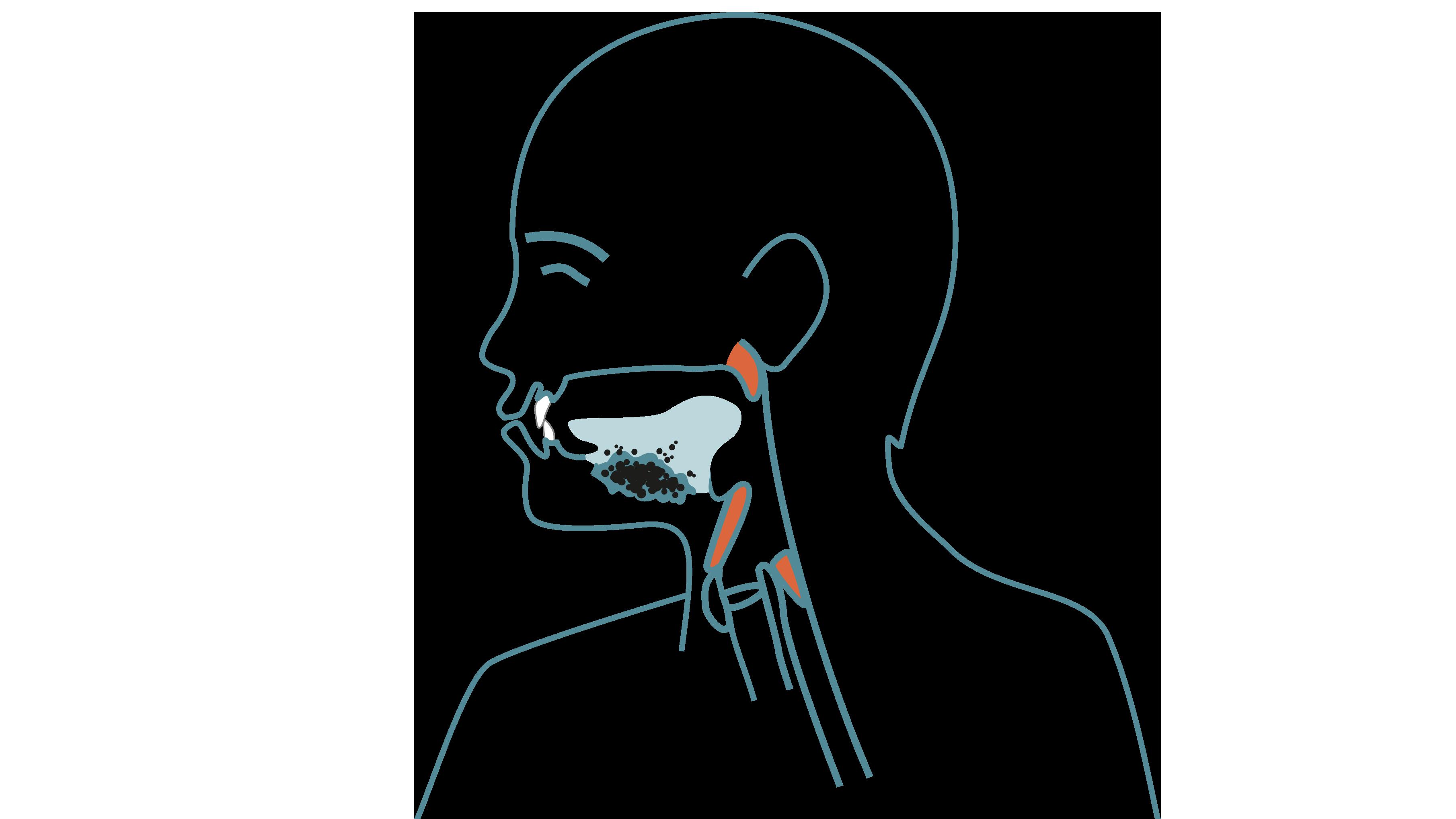 magsyra i munnen