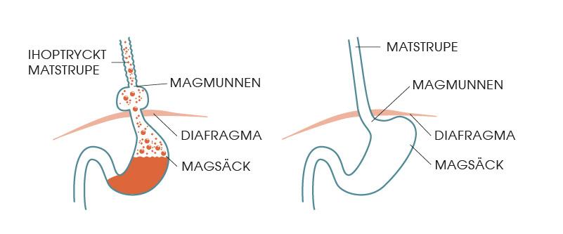 Magsäckens position vid diafragmabråck och det ser ut vid problem med reflux