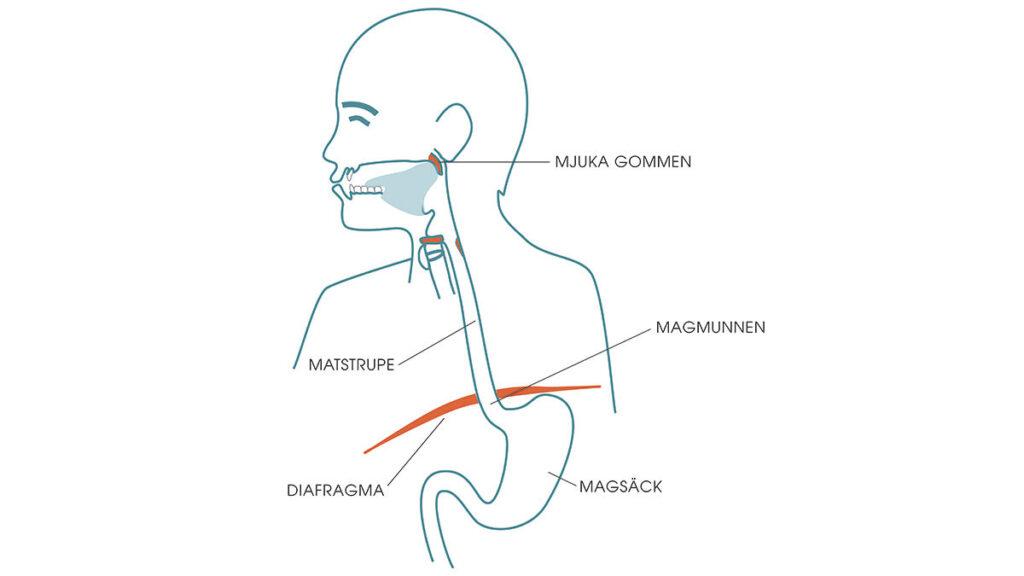 Snarkning och reflux orsakas av försvagad inre muskulatur