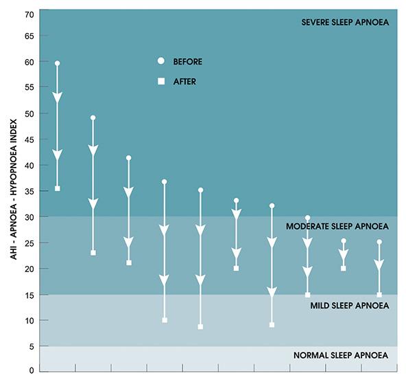pilot study sleep apnoea iqoro