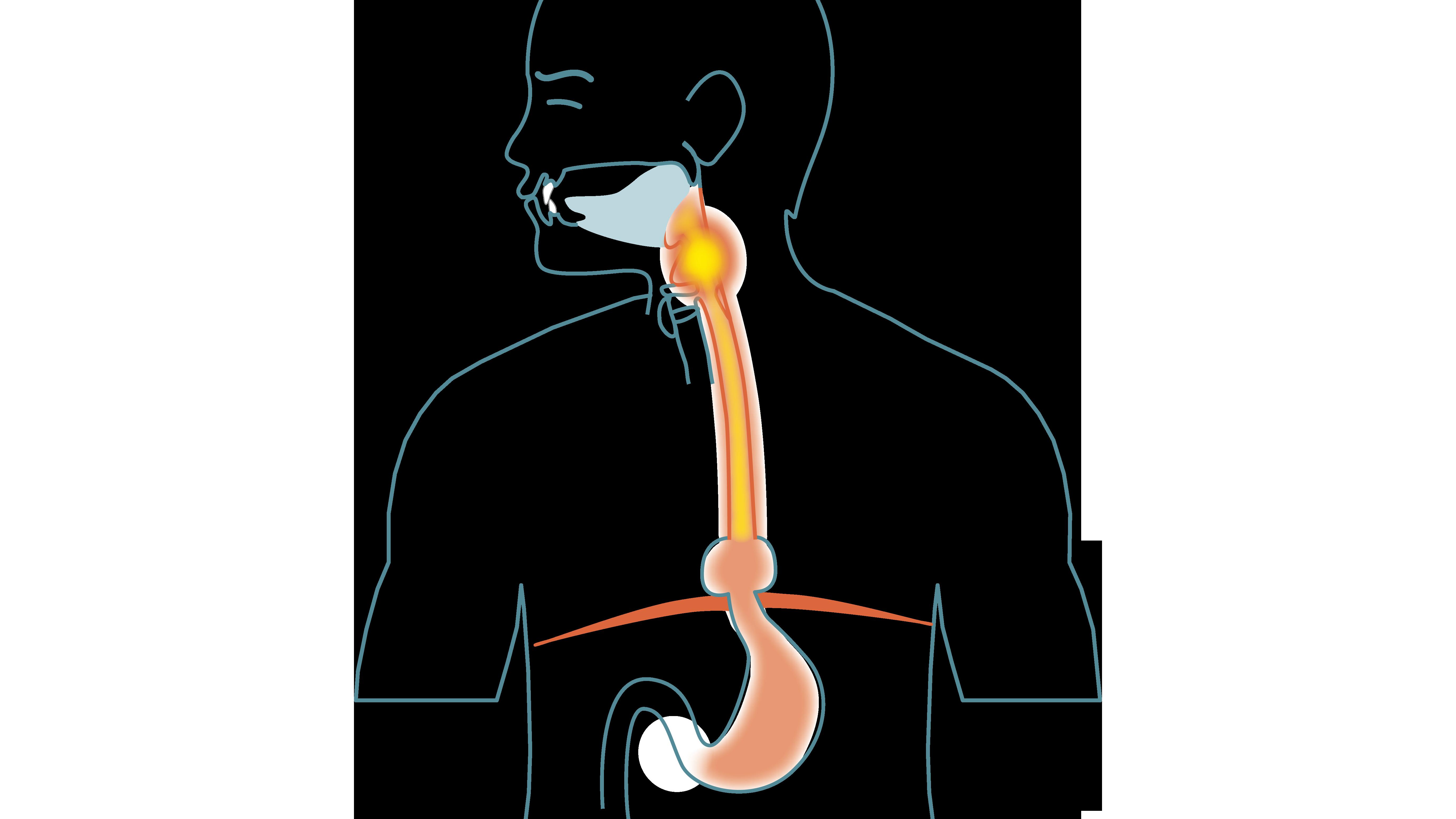 Reflux (Gastroesophageal Reflux Disease, GERD)